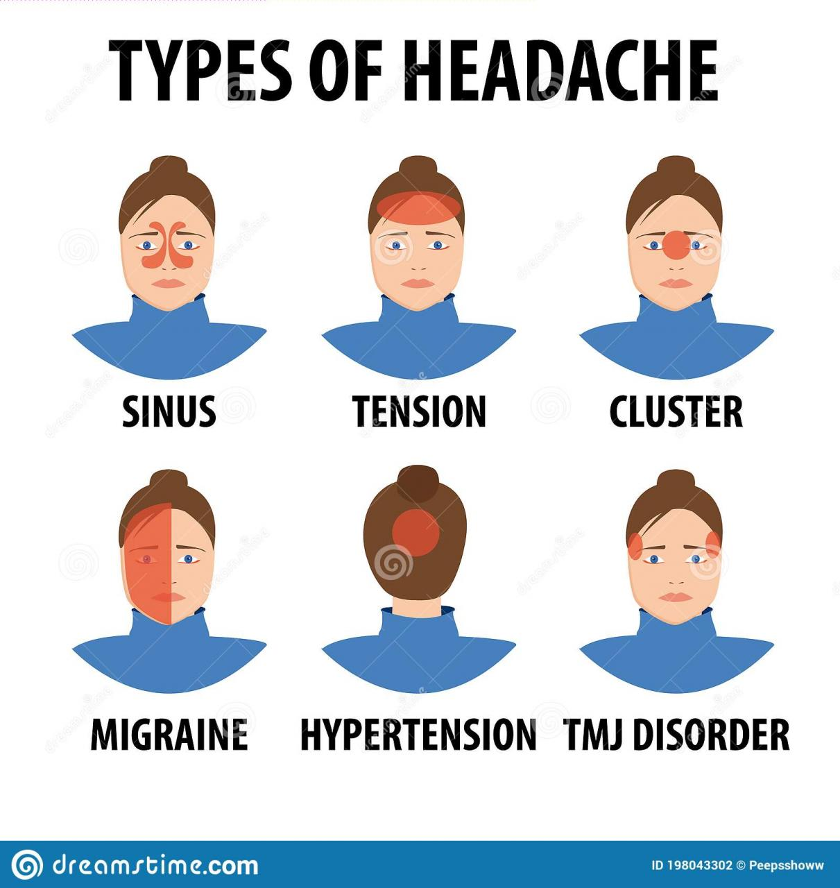 Assessment of acute headache in adults – what the general physician needs  to know | RCP Journals