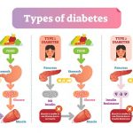 Preventing Diabetes with a Healthy Lifestyle | Feel Healthy with Dr. Scott  Lear
