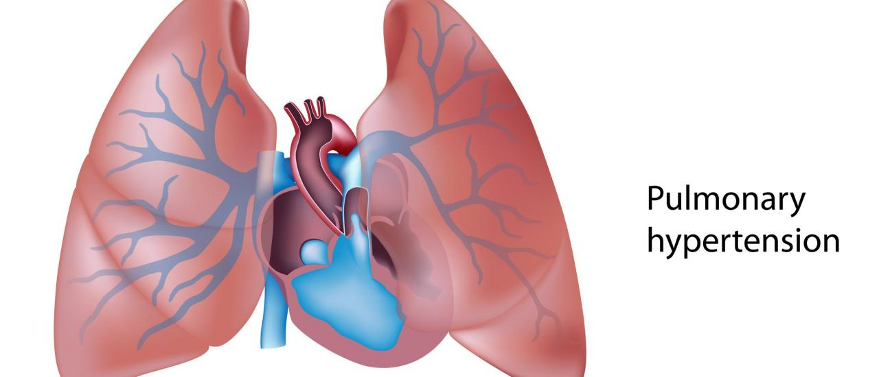 Pulmonary Hypertension Explained by a Cardiologist • MyHeart