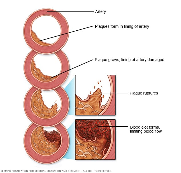 Arteriosclerosis / atherosclerosis - Symptoms and causes - Mayo Clinic