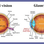 What is Ocular Hypertension & How It Can Lead To Glaucoma   FLEI