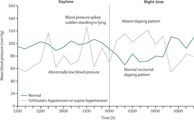 Neurogenic orthostatic hypotension and supine hypertension in Parkinson's  disease and related synucleinopathies: prioritisation of treatment targets  - The Lancet Neurology