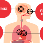How High Blood Pressure Can Lead to Kidney Damage or Failure   American  Heart Association