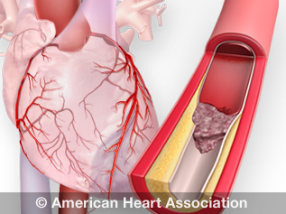 How High Blood Pressure Can Lead to a Heart Attack | American Heart  Association