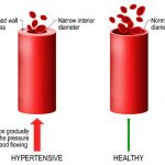 How to Lower High Blood Pressure: Treatment & Medication | Health Plus