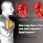 How Long Does a Person Live with Pulmonary Hypertension?