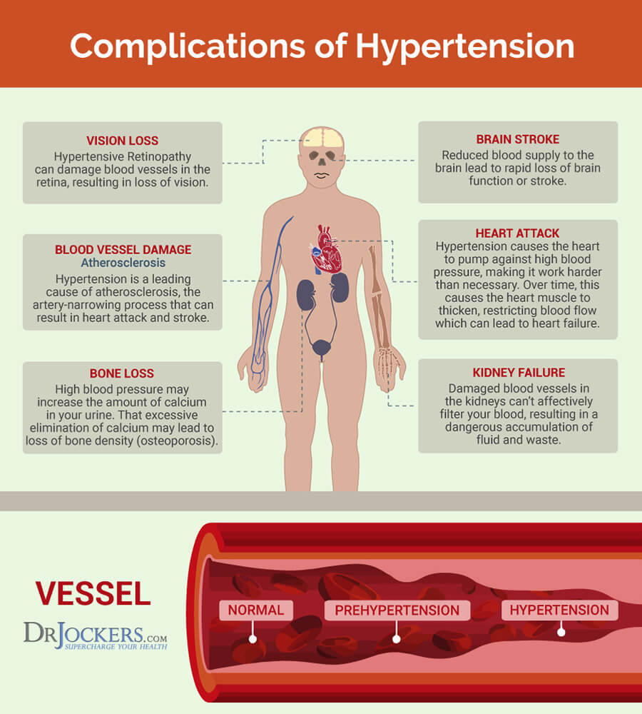 Hypertension: Symptoms, Causes and Natural Support Strategies