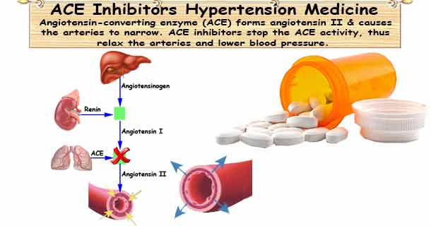ACE Inhibitors: Angiotensin-Converting Enzyme Inhibitors
