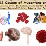 12 Hypertension Causes | 5 Primary & 7 Secondary High Pressure Causes