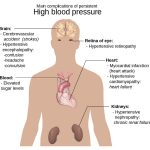 How Chiropractic Care Can Help to Treat Hypertension (High Blood Pressure)