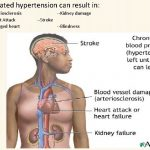 Dr Atapour Nephrologist Hypertension Blood pressure levels are