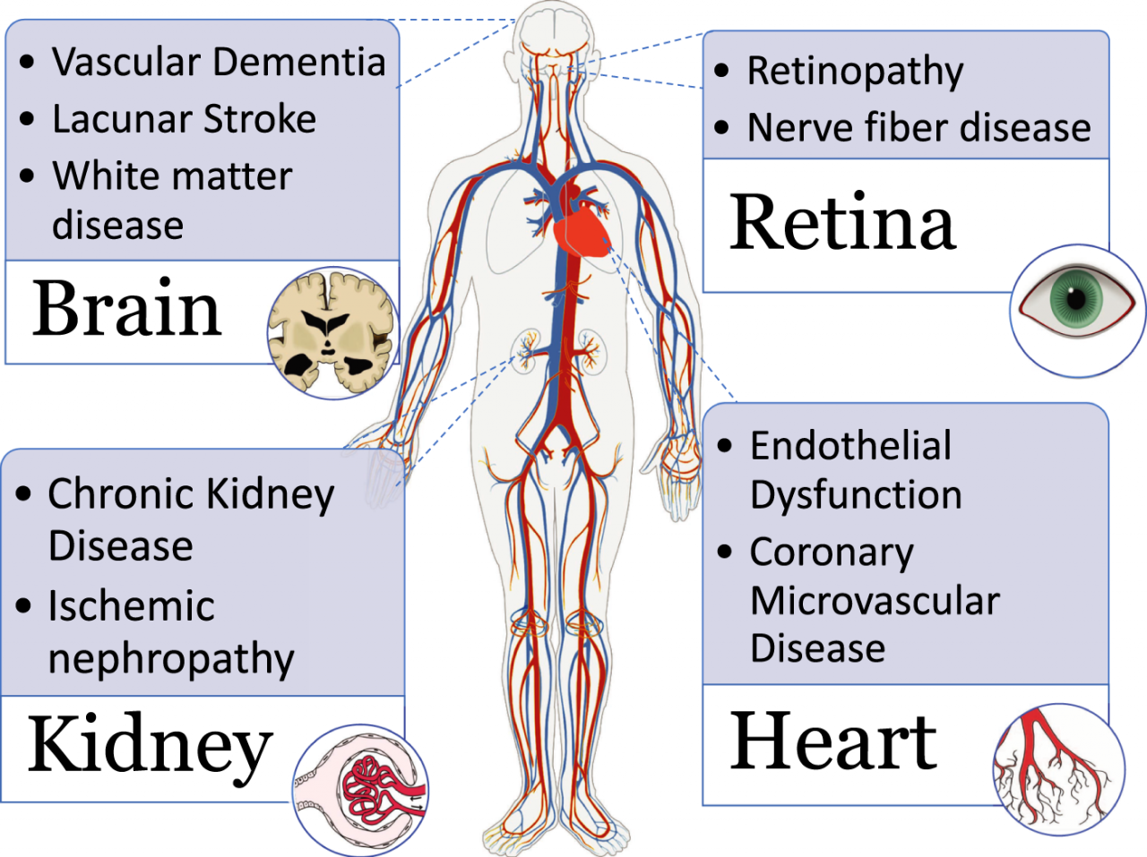 Small‐Vessel Disease in the Heart and Brain: Current Knowledge, Unmet  Therapeutic Need, and Future Directions | Journal of the American Heart  Association
