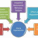 Cureus | Obstructive Sleep Apnea and Hypertension: A Review of the  Relationship and Pathogenic Association