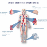 Who is affected by diabetes, what are the health risks? - Pep2Dia®