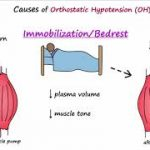 Orthostatic Hypotension (Described Concisely) - YouTube