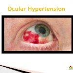 Ocular Hypertension: Causes, Symptoms, Daignosis, Prevention and Treatment  by lazoithelife - issuu