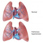 Atrial Septostomy in Treatment of End-Stage Right Heart Failure in Patients  With Pulmonary Hypertension – My Canadian Pharmacy