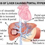 Portal Hypertension - Causes, Symptoms, Diagnosis, Treatment, Recovery