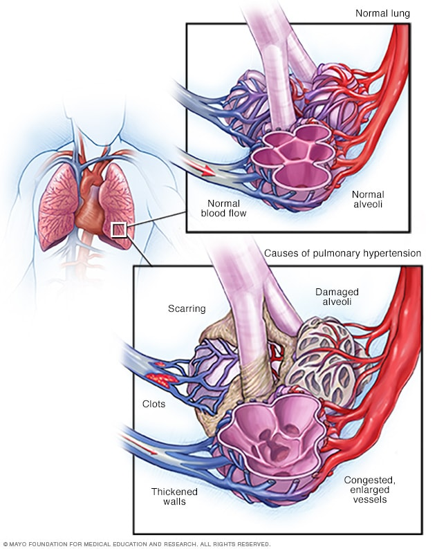 Pulmonary hypertension - Symptoms and causes - Mayo Clinic