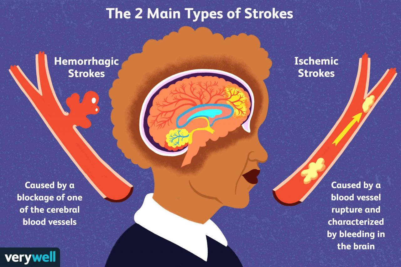 Stroke: Causes and Risk Factors