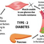 Type 1 and type 2 diabetes which is more dangerous