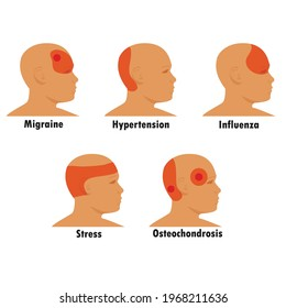Types Of Headache Set. Stress And Sinus Ache, Migraine Stock Vector -  Illustration of medical, explains: 148814238