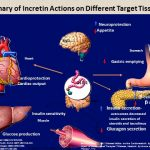 Pathophysiology in the Treatment of Type 2 Diabetes: Newer Agents, Part 3  of 5