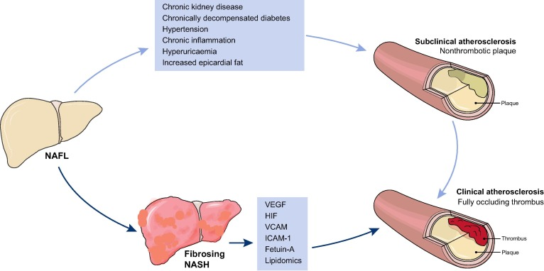 Hypertension, diabetes, atherosclerosis and NASH: Cause or consequence? -  ScienceDirect