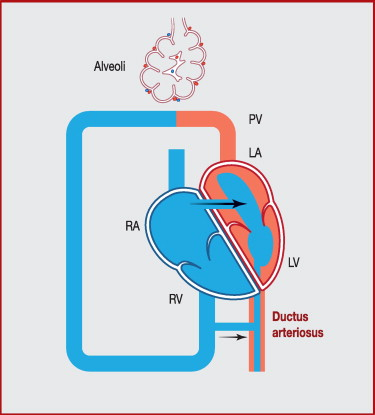Pathophysiology of persistent pulmonary hypertension of the newborn: Impact  of the perinatal environment - ScienceDirect