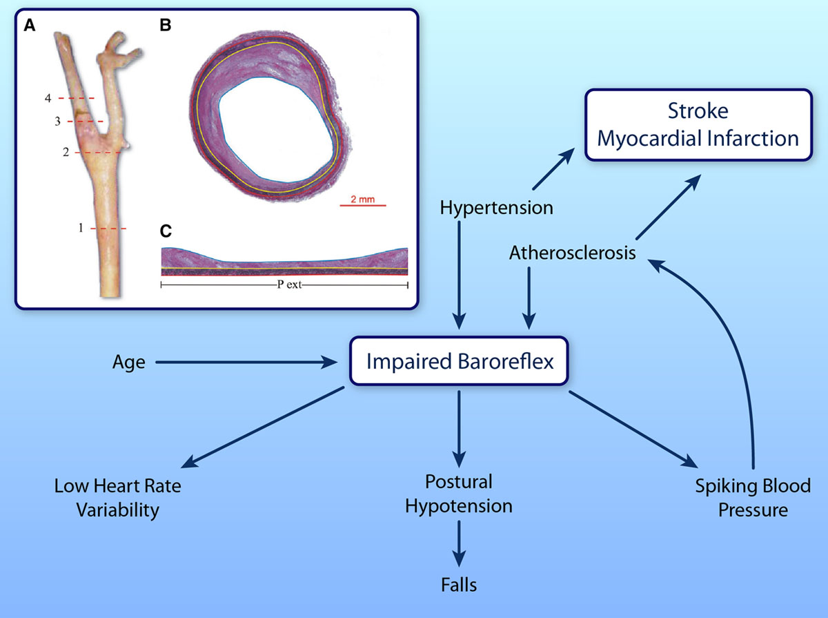 Atherosclerosis and Blood Pressure Variability   Hypertension