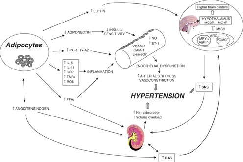 Mechanisms of obesity-induced hypertension   Hypertension Research