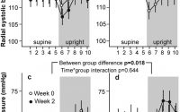 Voluntary liquorice ingestion increases blood pressure via increased volume  load, elevated peripheral arterial resistance, and decreased aortic  compliance | Scientific Reports