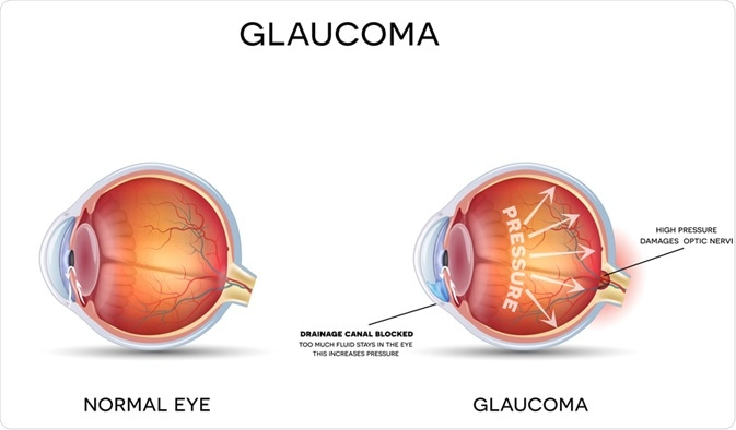 Ocular Hypertension: Diagnosis and Treatment