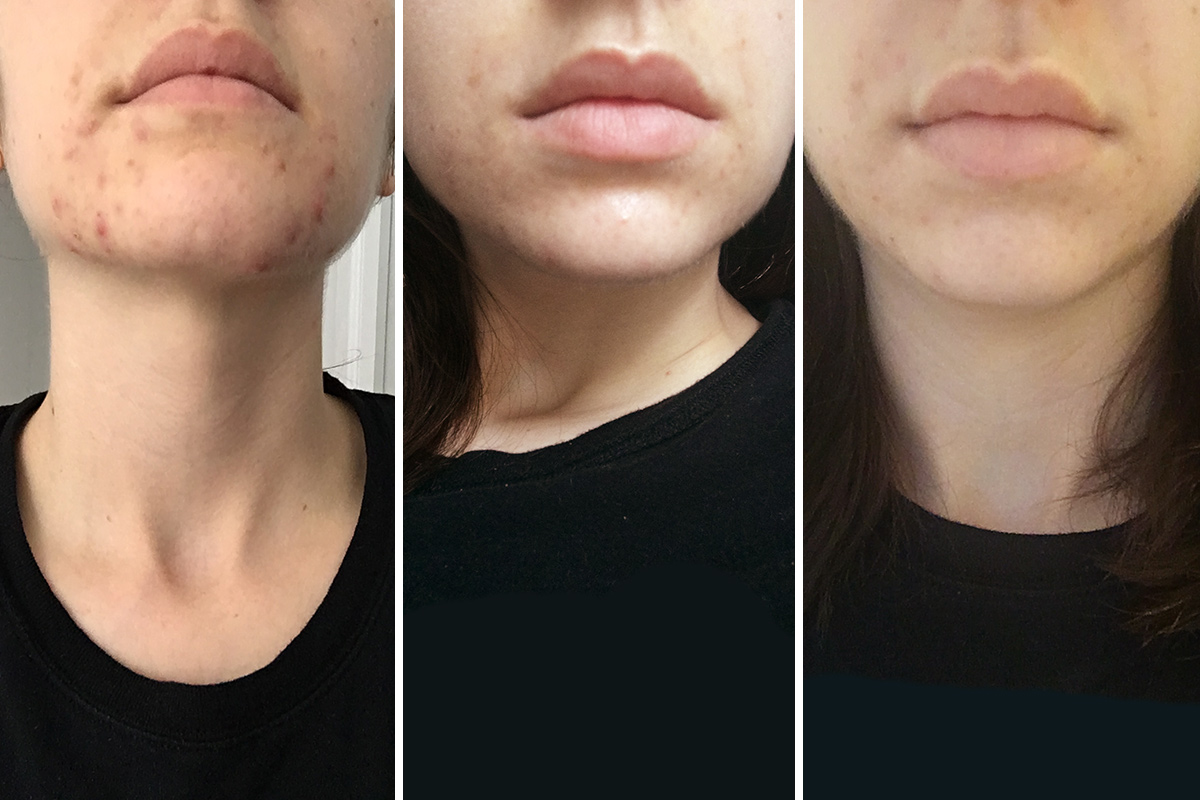 Spironolactone for Acne Before-and-After Photos   InStyle