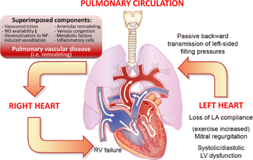 Cardiopulmonary interaction and pathobiology of pulmonary hypertension... |  Download Scientific Diagram