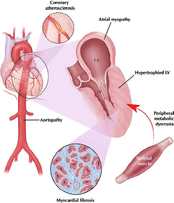 Hypertensive heart disease involves disparate elements, ranging from...    Download Scientific Diagram