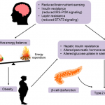 Pathogenesis of obesity and type 2 diabetes due to defective central... |  Download Scientific Diagram