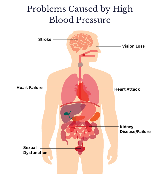 How to Lower Blood Pressure Naturally or with Medications