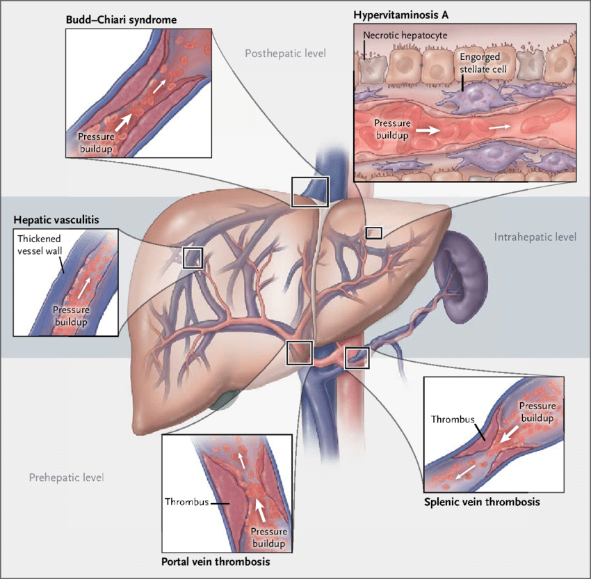 Selected Causes of Portal Hypertension in the Absence of Cirrhosis.... |  Download Scientific Diagram