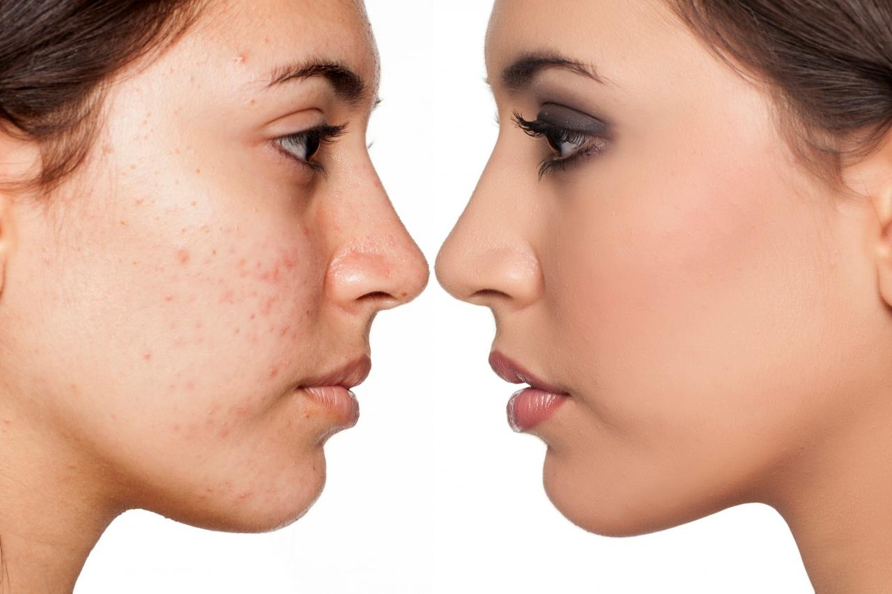 Stubborn acne? Hormonal therapy may help