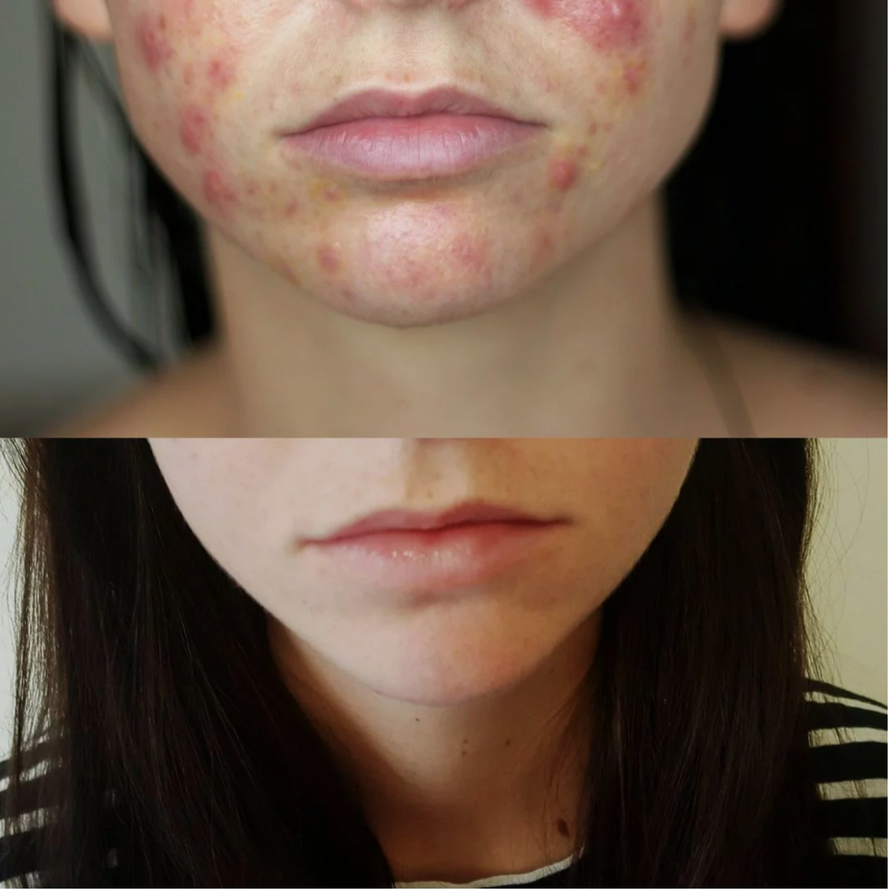 Spironolactone Clears Woman's Acne in 4 Months: Before and After Photos    Allure