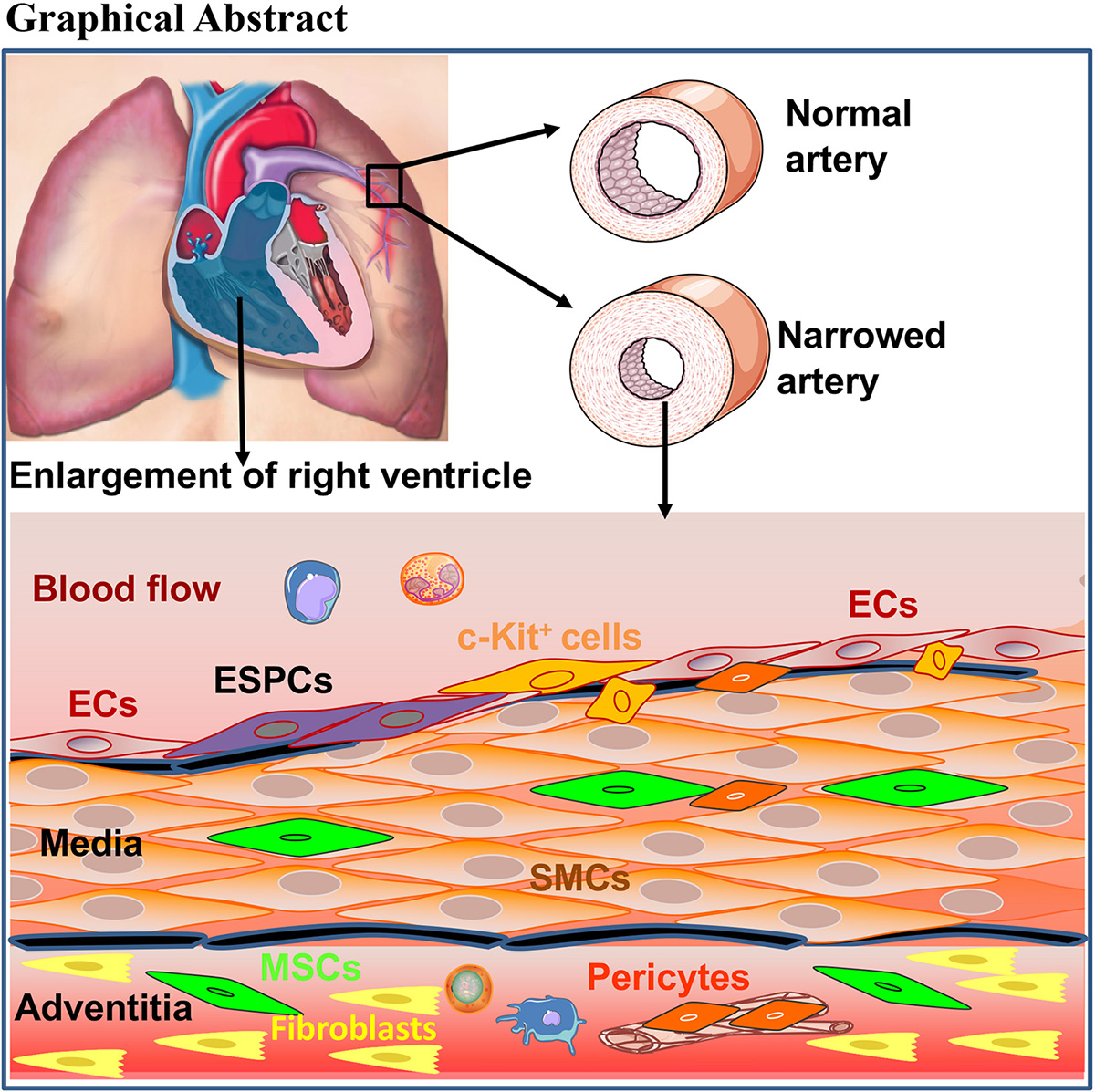 Stem/Progenitor Cells and Pulmonary Arterial Hypertension |  Arteriosclerosis, Thrombosis, and Vascular Biology