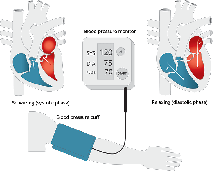 High Blood Pressure - Hypertension. Causes & Treatment - Heart Foundation