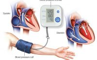 High blood pressure (hypertension) - Diagnosis and treatment - Mayo Clinic