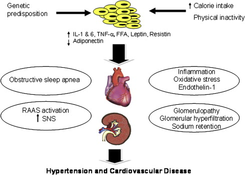 Hypertension in Obesity - Medical Clinics