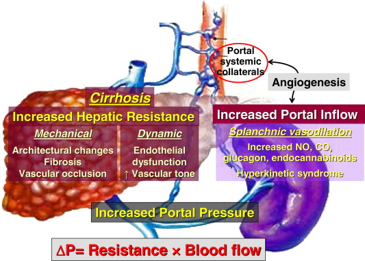 The management of portal hypertension: Rational basis, available treatments  and future options - Journal of Hepatology