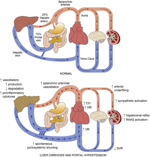 Surgery in Patients with Portal Hypertension - Clinics in Liver Disease