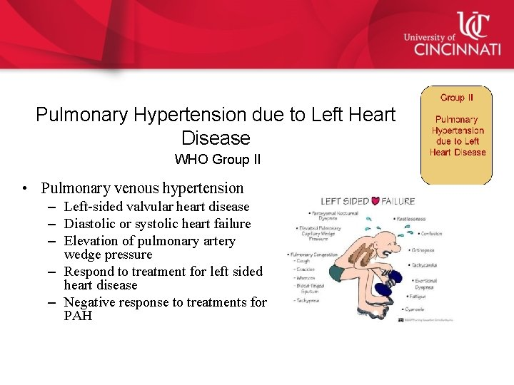 Pulmonary Hypertension What you need to know for