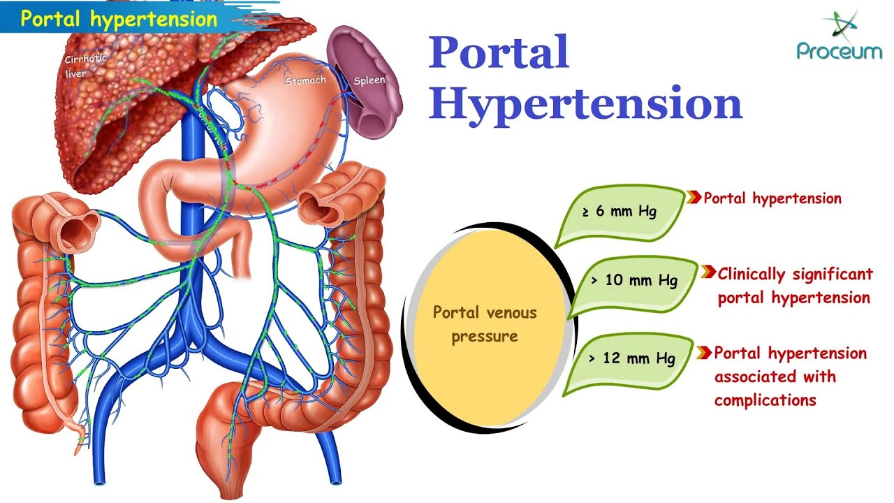 Direct and indirect methods for the assessment of portal hypertension....    Download Scientific Diagram
