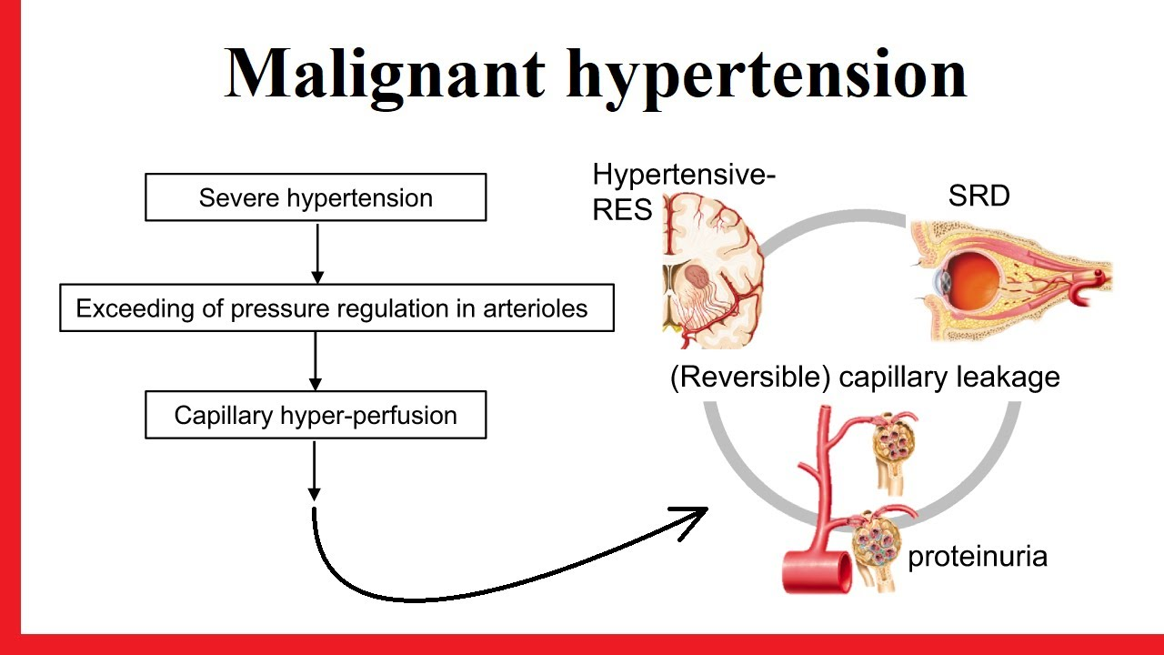 Table 1 from From malignant hypertension to hypertension-MOD: a modern  definition for an old but still dangerous emergency   Semantic Scholar